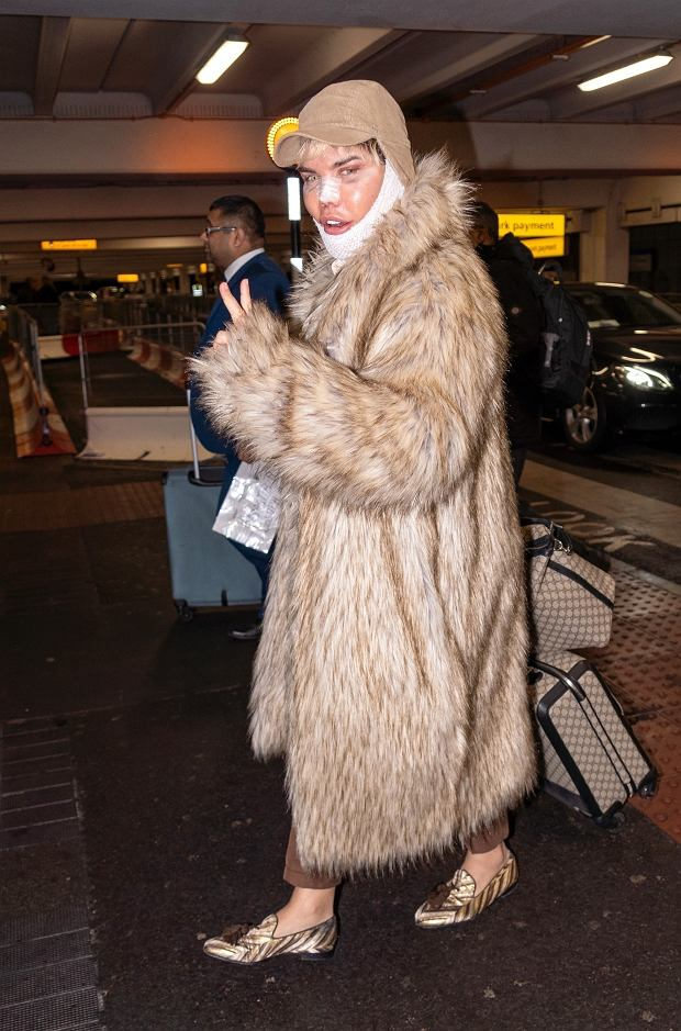 BGUK_1477466 - London, UNITED KINGDOM  - Rodrigo Alves the Human Ken Doll flies into Heathrow Airport after his latest bout of plastic surgery in Iran. Rodrigo was still sporting bandages on his chin and plasters on his nose after his surgery.  Pictured: Rodrigo Alves  BACKGRID UK 5 FEBRUARY 2019   UK: +44 208 344 2007 / uksales@backgrid.com  USA: +1 310 798 9111 / usasales@backgrid.com  *UK Clients - Pictures Containing Children Please Pixelate Face Prior To Publication*