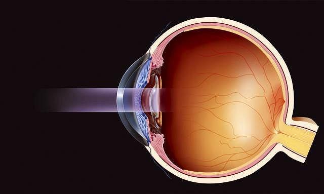 Zaćma bywa nazywana także kataraktą. Starożytni uważali, że wywołuje ja płyn zapalny spływający z mózgu do oka, gwałtownie, jak po katarakcie na Nilu.