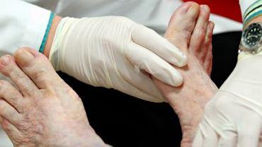 Zespól stopy cukrzycowej to jedno z poważniejszych powikłań cukrzycy