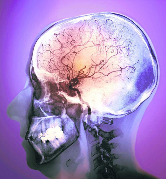 Zdjęcie naczyń krwionośnych w mózgu