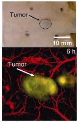 Dolne zdjęcie pokazuje czerniaka po zastosowaniu nowego środka kontrastowego