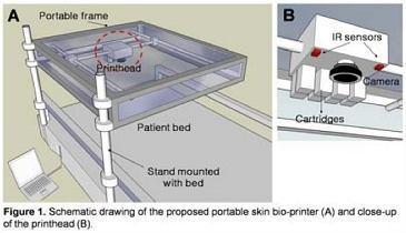 Po lewej stronie koncepcja urządzenia zamontowanego nad łóżkiem pacjenta, po prawej głowica drukarki