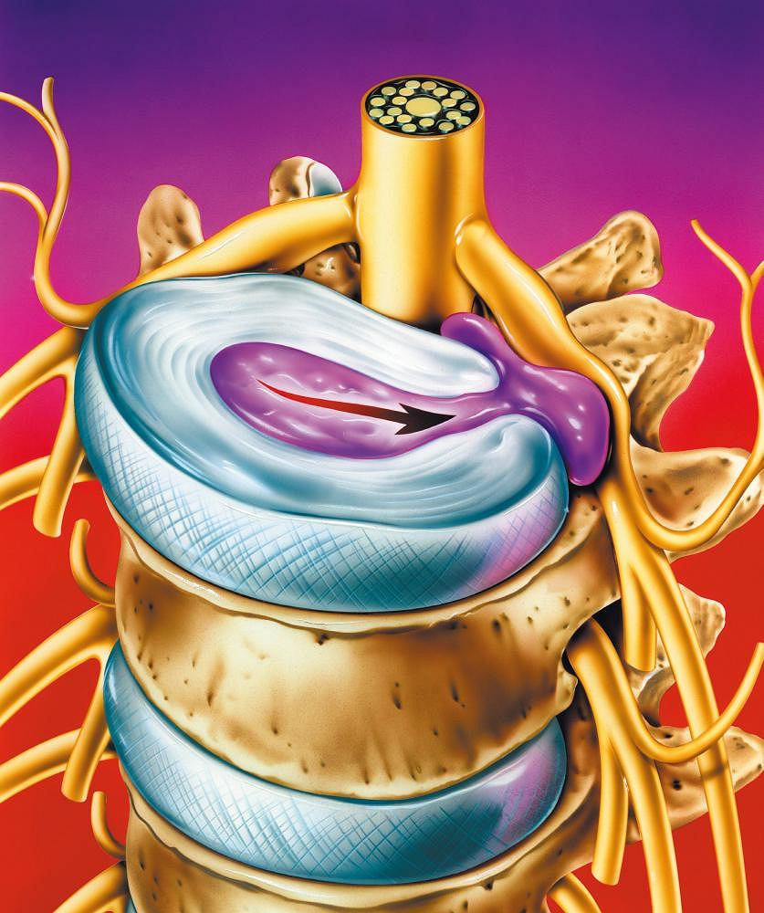 Przepuklina dyskowa. Ilustracja przedstawia nacisk wywierany przez przepuklinę dyskową na nerwy i rdzeń kręgowy. Strzałka wskazuje kierunek wysunięcia się przepukliny