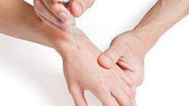 Niektóre schorzenia reumatoidalne wymagają podania leków bezpośrednio do stawu