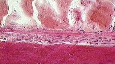 Okostna. Włóknista błona (1) pokrywająca kość (2), do której przymocowane są mięśnie (3). Jej główną funkcją jest produkcja tkanki kostnej podczas wzrostu i po złamaniach