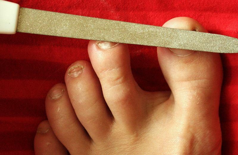 Piłowanie paznokci pilniczkiem zapobiega podrażnianiu sąsiadujących palców i uelastycznia paznokcie