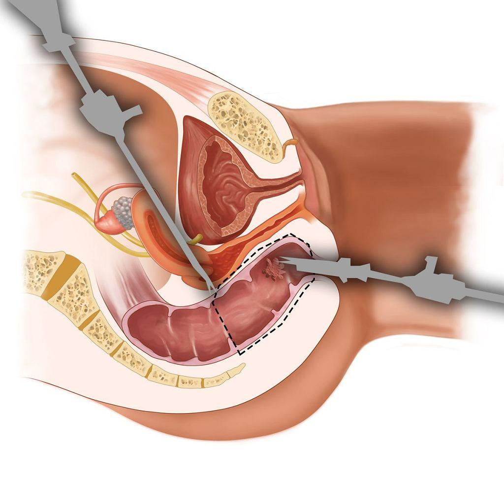 Laparoskopowe usunięcie odbytnicy zwiększa szansę na zachowanie zwieraczy i chroni pacjenta nie tylko przed długotrwałym procesem leczenia, ale przede wszystkim koniecznością trwałego wyłonienia stomii