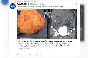 Kobietę bolał brzuch. Okazało się, że w pęcherzu moczowym ma kamień wielkości grejpfruta