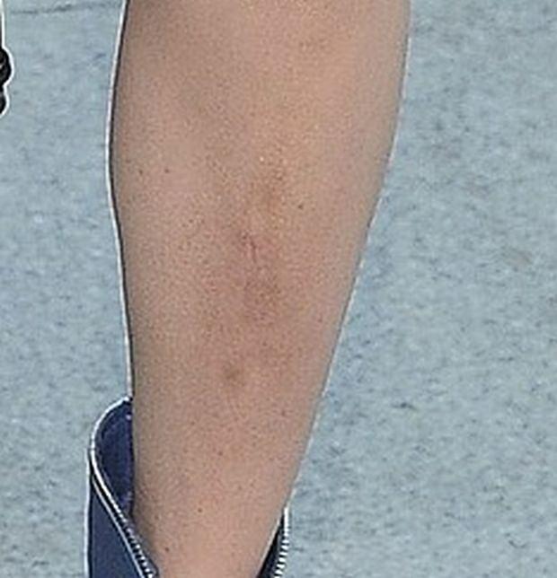 Doda nogi