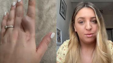 """Przerażona kobieta zgłosiła się do szpitala z ogromnym guzem. Lekarze zbagatelizowali """"ciężarny palec"""""""