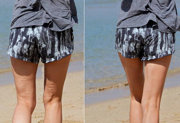Nogi z cellulitem i bez cellulitu