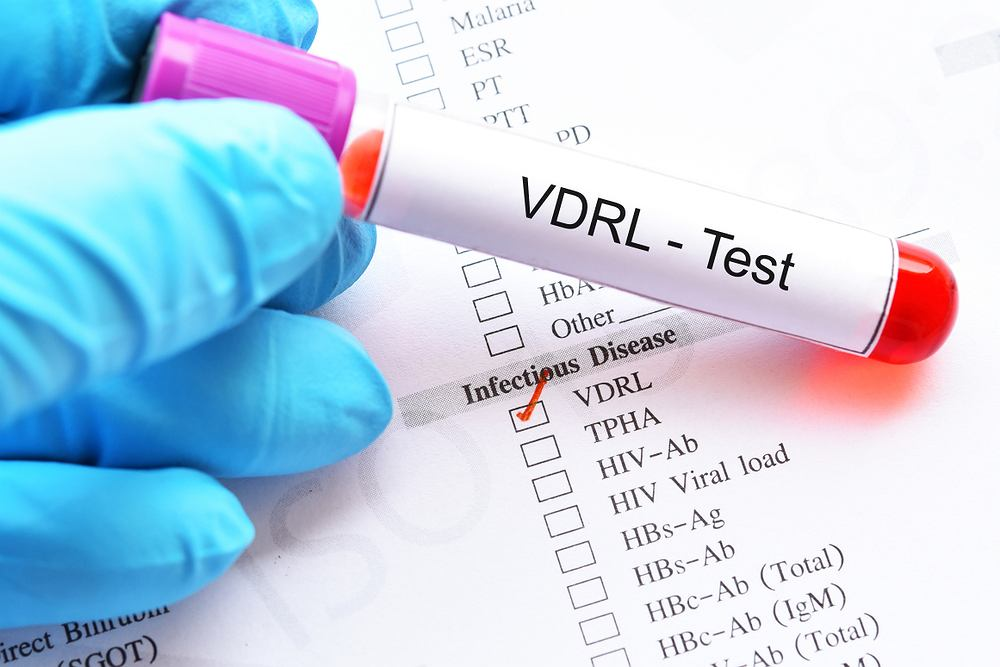 Badanie VDRL to test przesiewowy, który wykonuje się w celu wykrycia zakażenia kiłą