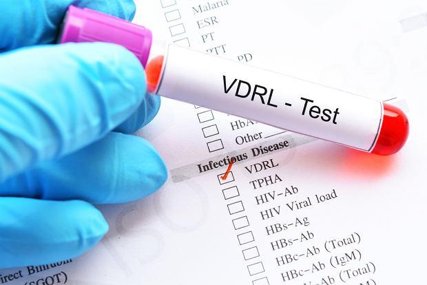 Badanie VDRL w kierunki kiły. Jak wygląda i kiedy warto je wykonać?