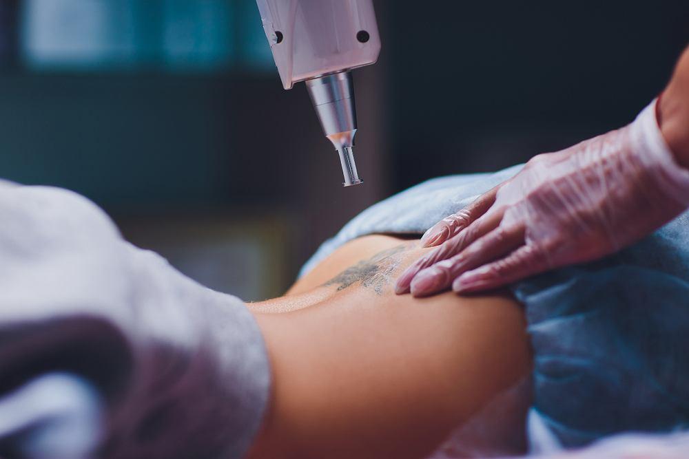 Zmieniająca się barwa tatuażu miałaby wskazywać na stan zdrowia pacjenta.