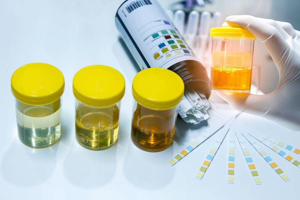 Białko w moczu może oznaczać poważne problemy zdrowotne. Zdjęcie ilustracyjne