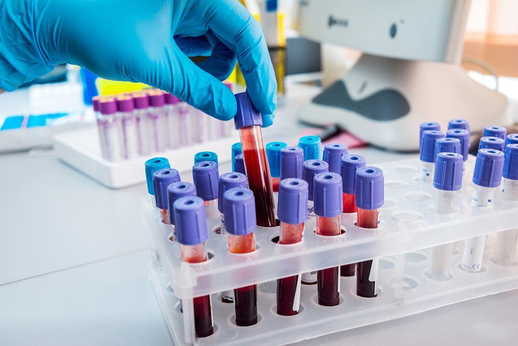 Co oznacza grupa krwi ARhD+ i ARh+?