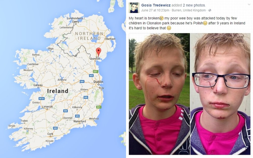 Mama Igora umieściła zdjęcia pobitego syna na Facebooku