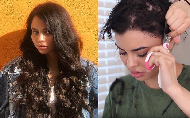 Opłakane efekty doczepiania włosów