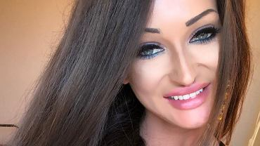 Małgorzata Godlewska zdradziła, ile waży i jakie miała operacje plastyczne