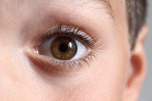 Zapalenie spojówek u dzieci starszych - przyczyny, objawy oraz leczenie