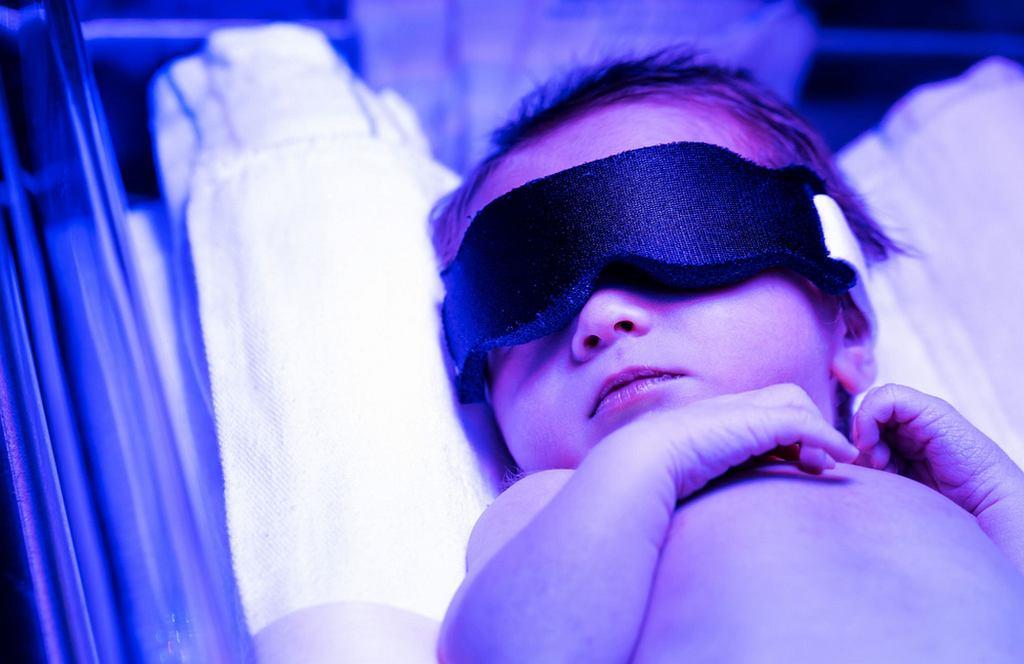 Żółtaczka fizjologiczna może być leczona fototerapią