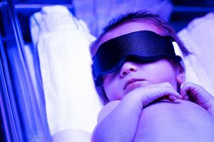 Żółtaczka fizjologiczna u noworodków - przyczyny, objawy, leczenie