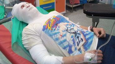 Szer. Marcin Piotrowski uratował dziecko sąsiadów z płonącego mieszkania, sam doznał rozległych oparzeń.