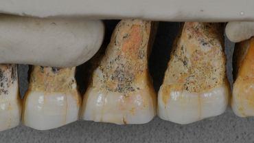 Garnitur zębów Homo luzonensis. Widok od strony policzka - od lewej: dwa przedtrzonowce i trzy trzonowce