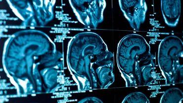 Zespół Aperta to rzadka choroba genetyczna charakteryzująca deformacją czaszki, a niekiedy całego ciała