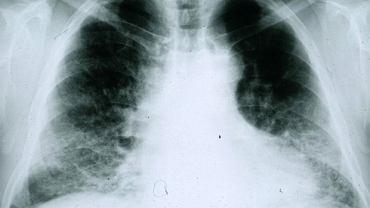 Rentgen płuc pacjenta chorego na IFP