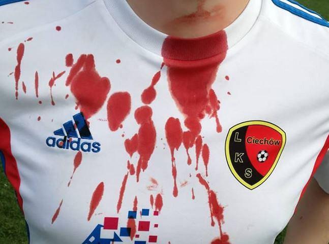 Zakrwawiona koszulka piłkarza LKS Ciechów po ataku pseudokibica