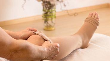Jedną z metod leczenia zakrzepicy żył głębokich jest noszenie specjalnych rajstop lub pończoch uciskowych