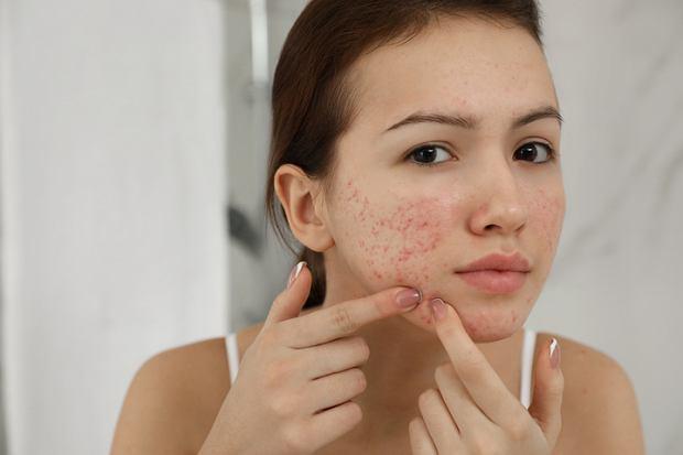 Trądzik: dlaczego coraz więcej osób ma ten problem ze skórą?