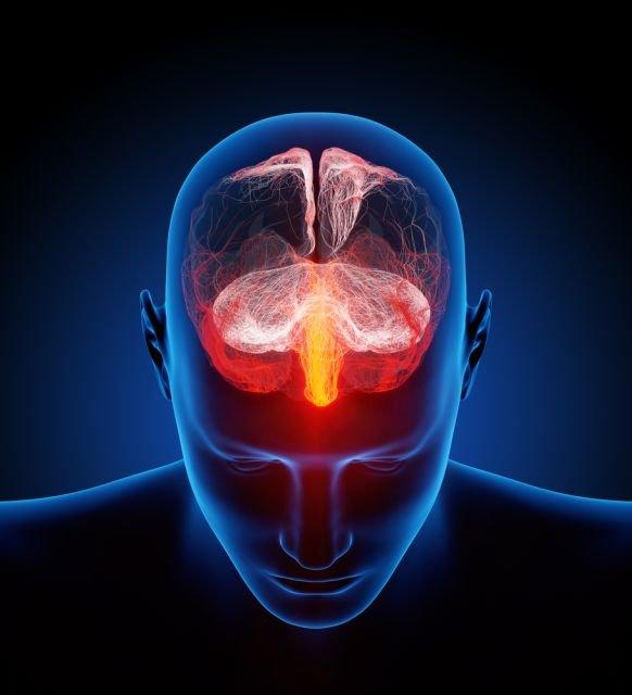 Typowe dla schorzenia zmiany w mózgu mogą pojawić się m.in. u pacjentów po udarze