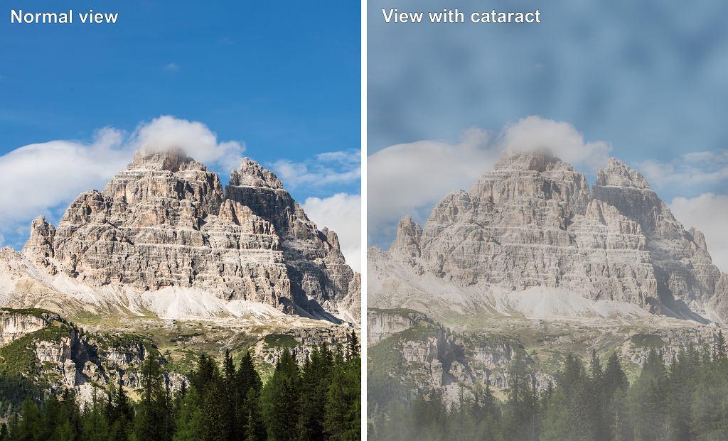 W zaćmie na skutek zmętnienia soczewki w oku obraz staje się coraz bardziej blady i rozmyty