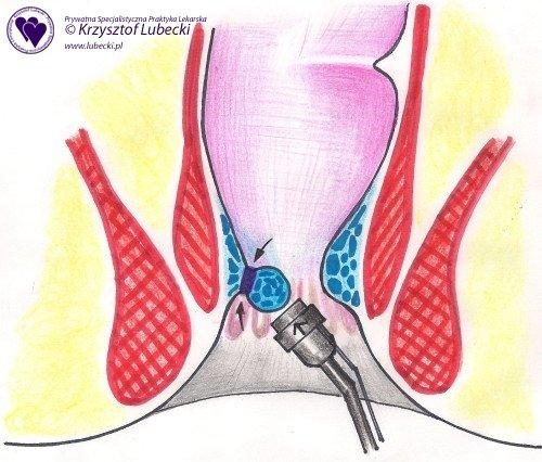 Schemat zabiegu ligatury Barrona etap II