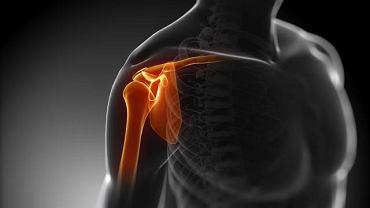 Za zwężanie się szpary stawowej najczęściej odpowiada wtórna choroba zwyrodnieniowa