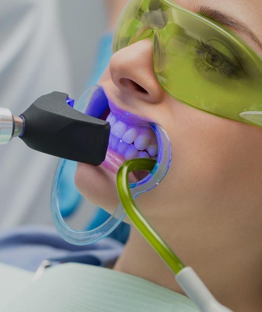 Czy zdrowe zęby to białe zęby?