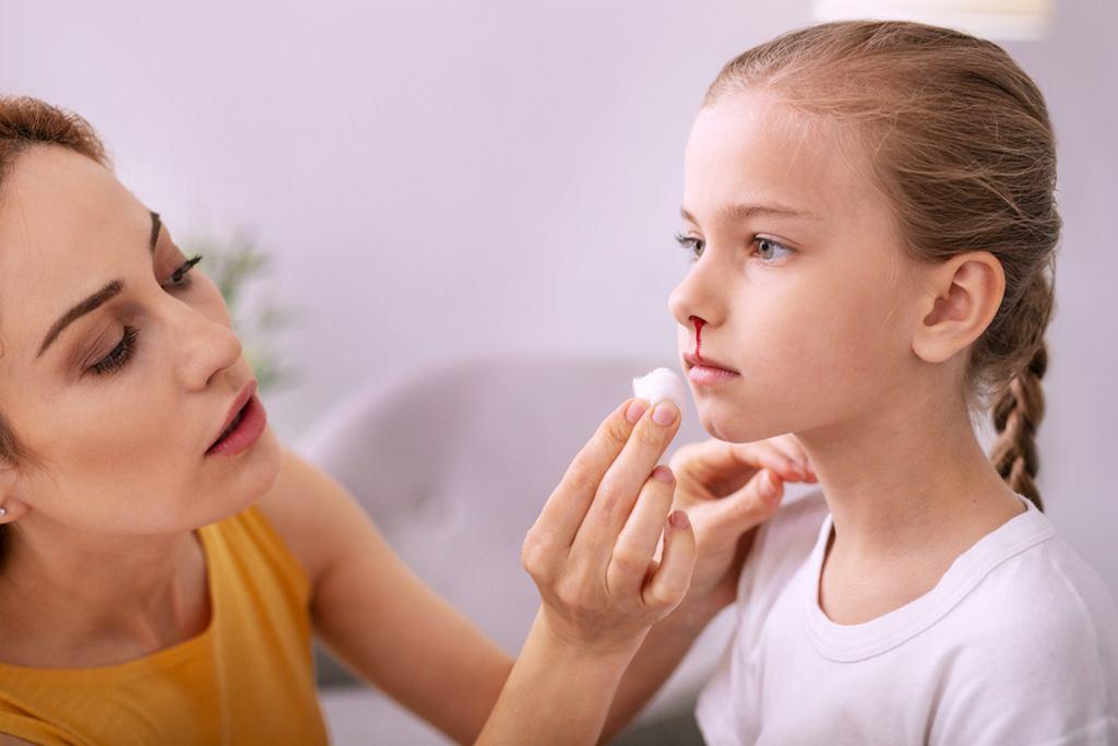 Zaburzenia krzepnięcia u dzieci objawiają się m.in. nawracającymi krwawieniami z nosa