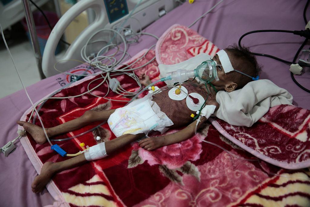 Klęska głodu w Jemenie
