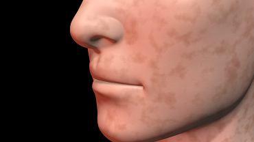 Czy przebarwienia na twarzy znikną same?