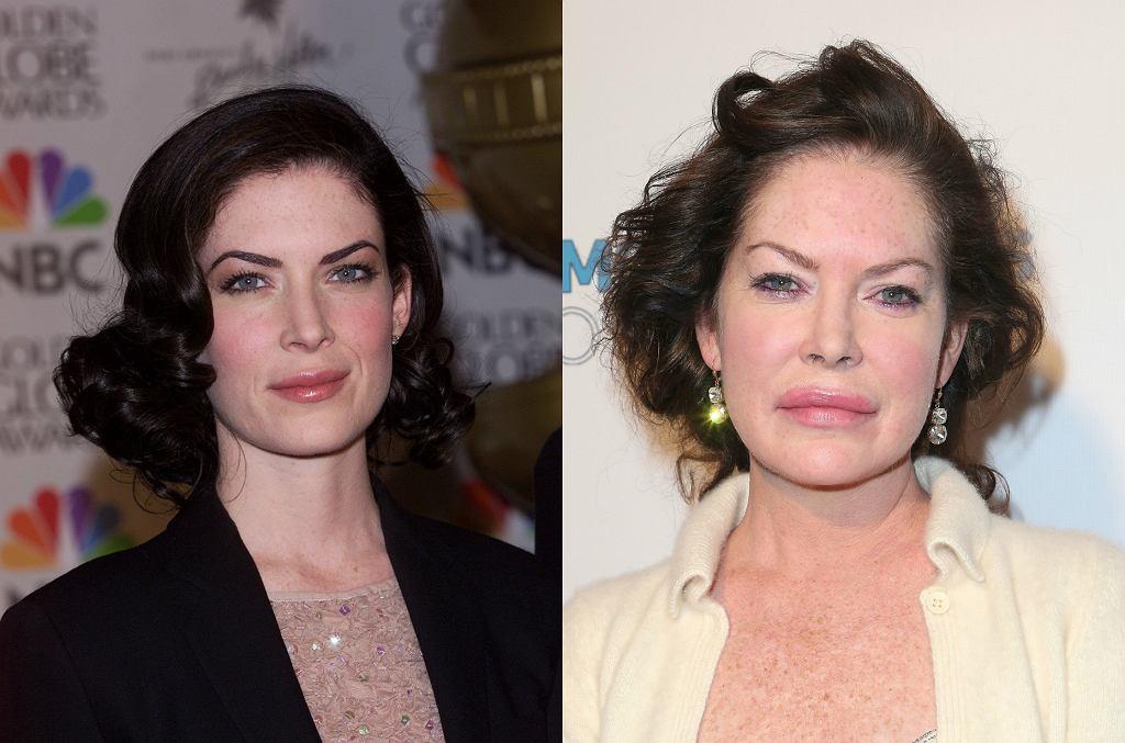 Lara Flynn Boyle, gwiazda dawnego 'Miasteczka Twin Peaks', chcąc zatrzymać czas, zrobiła ze swoją twarzą coś strasznego. Szkoda...