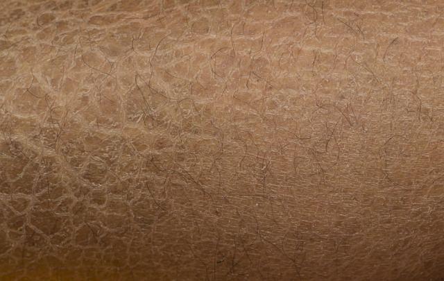 Rybia łuska charakteryzuje się nadmiernym rogowaceniem skóry