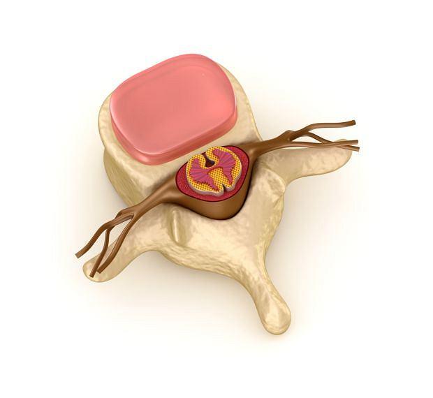 Charakterystyczna dla choroby Werdniga-Hoffmana wada genetyczna prowadzi do obumierania jąder przednich rdzenia kręgowego oraz jądra rdzeniowego opuszki
