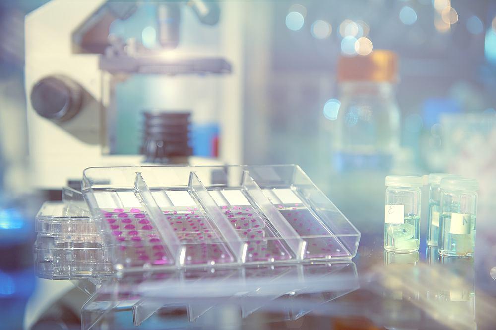 Badanie histopatologiczne polega na pobraniu od pacjenta próbki tkanek, a następnie poddaniu jej odpowiedniemu przygotowaniu i badaniu pod mikroskopem. Na podstawie tego badania diagnozuje się między innymi choroby nowotworowe.