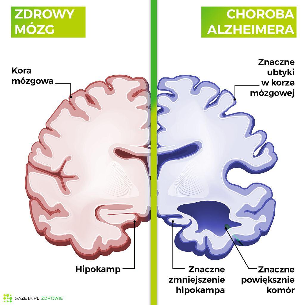 Najwcześniejszym objawem choroby Alzheimera jest utrata pamięci krótkotrwałe)