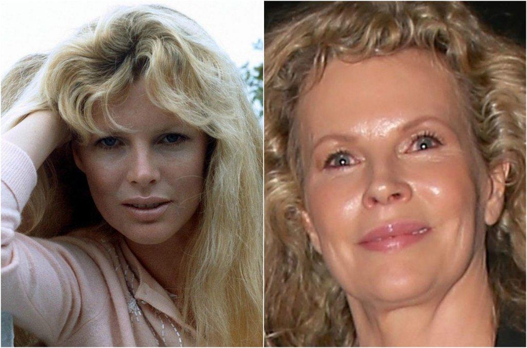 Kim Basinger w latach 80. i 90. była niekwestionowaną seksbombą. Dziś ma 62 lata i nikt nie oczekuje od niej młodzieńczego wyglądu, ale zmiany, jakie w ostatnim czasie zachodziły na jej twarzy, budziły niepokój. W czwartek paparazzi zrobili jej zdjęcia na lotnisku w Los Angeles. Zobaczcie, jak się zmieniła.