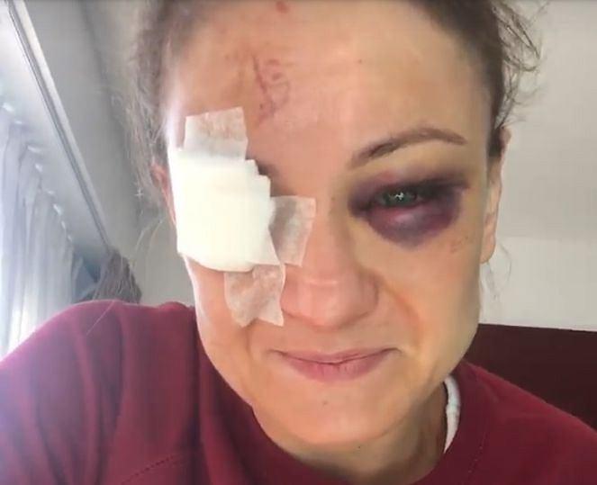 Karolina Kowalkiewicz po walce w Auckland