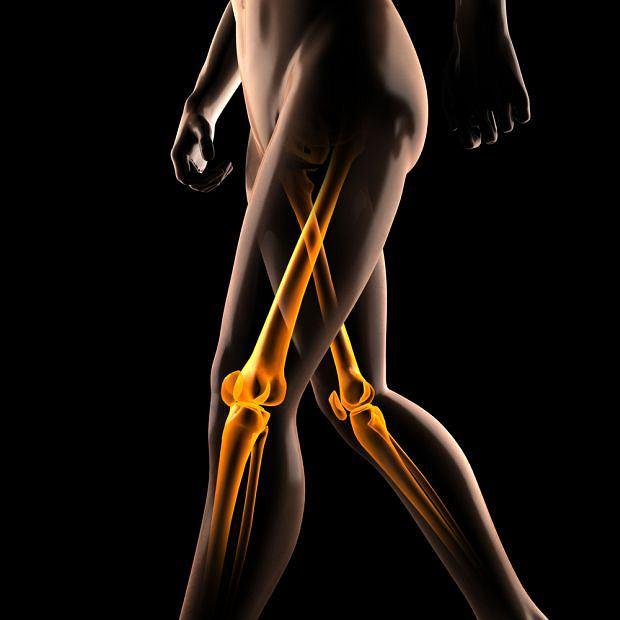 Maziówczak to rzadki nowotwór kości, który najczęściej zajmuje kości kolana lub stopy