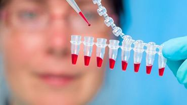 """Przed oznaczeniem stężenia hormonu konieczne jest """"oczyszczenie"""" krwi ze wszystkich jej elementów"""